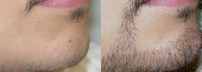 Hasil Pemakaian Kirkland Minoxidil Untuk Kumis Jenggot dan Brewok 6 Minggu