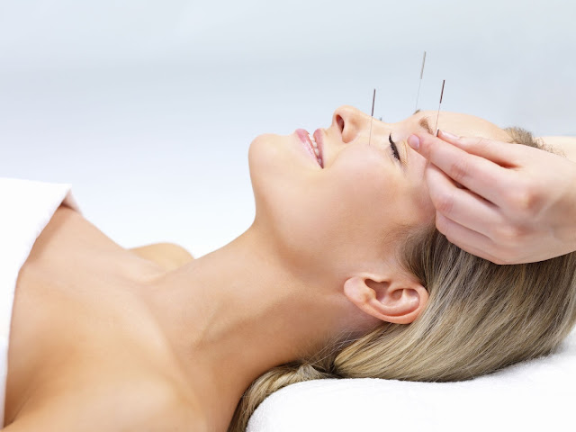 Acupuncture For Emotional Well Being