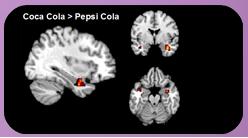 Cerebro estimulado con refrescos