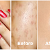 Most Effective Ways To Get Rid Of Acne Scars and Pimple Marks Naturally