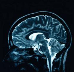 Hasil pemeriksaan otak dengan MRI