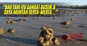 Thumbnail image for Mata Hampir Buta Terkena Tahi Manusia Dari Langit