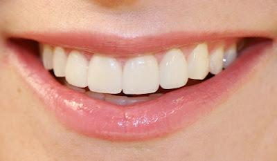 gigi sehat.jpg