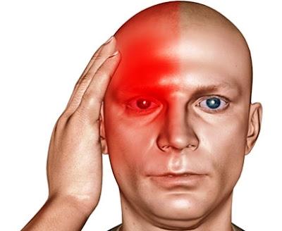 Apa Saja Tanda MIGRAIN ? – Sakit Kepala Sebelah ?