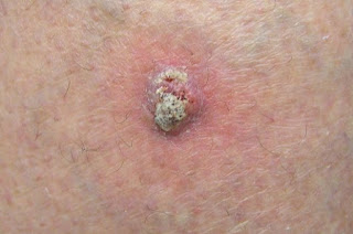Squamous Cell Carcinoma In Situ