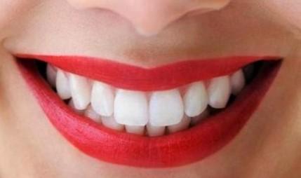 Manfaat Kulit Jeruk Untuk Memutihkan Gigi Cepat Alami Manfaatq