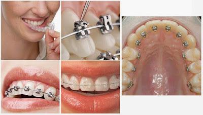 Cập nhật bảng giá niềng răng thẩm mỹ mới nhất