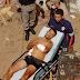 INSEGURANÇA E VIOLÊNCIA! Homem é baleado no Bairro Novo, em Guarabira
