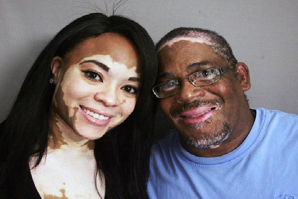 Los médicos cubanos lograr la cura para el vitiligo