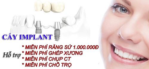 trồng răng cấm bằng phương pháp cấy ghép Implant -