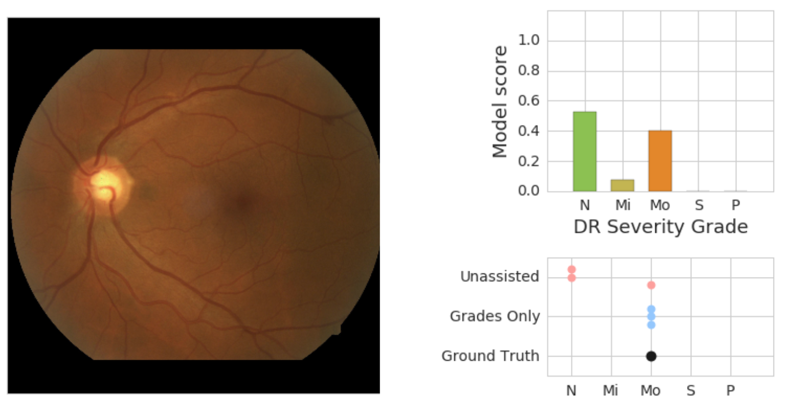 hight resolution of on the left is a retinal fundus image graded as having moderate dr mo by an adjudication panel of ophthalmologists ground truth