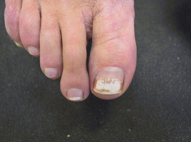 White Spots On Toenails From Nail Polish Nails Magazine