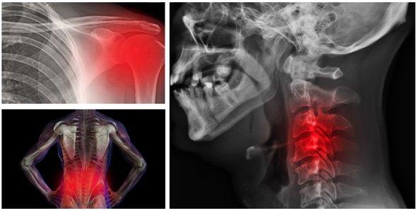 7 tipuri de dureri cronice ale corpului, care pot avea drept cauza stari psihologice/emotionale