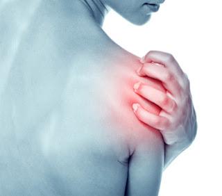 How to Treat Frozen Shoulder Naturally