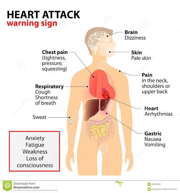 Sakit Jantung atau Serangan jantung,tanda-tanda anda menghidap PENYAKIT JANTUNG
