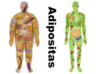 adipositas-www.healthnote25.com