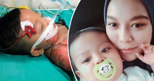 Bayi 10 Bulan Melecur Teruk Kena Air Rebusan Ketupat