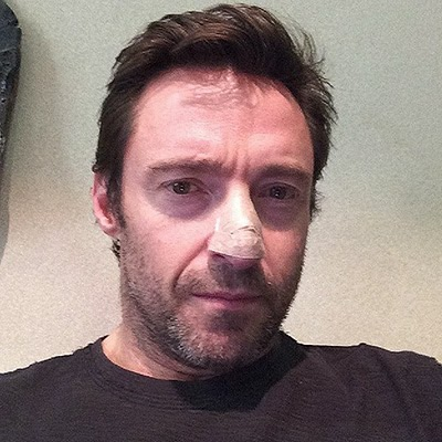 Hugh Jackman found skin cancer