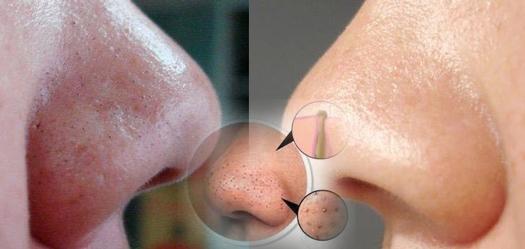 Image result for pembersih wajah pria untuk kulit berminyak dan berkomedo