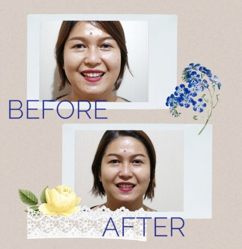 reviee klinik kecantikan rosecare duren sawit