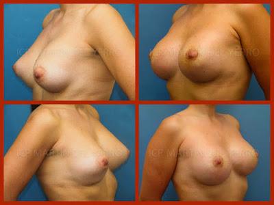 segunda cirugía de mama tubular fotografías de antes y después