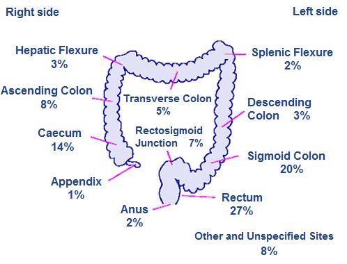 Colon Cancer 2015