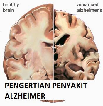Kenali ciri-ciri pesakit Alzheimer