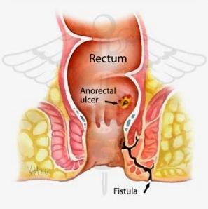 Obat Fistula Ani Tradisional
