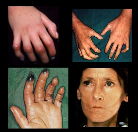 esclerodermia es hereditaria