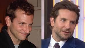 saç ekimi öncesi ve sonrası foto 1