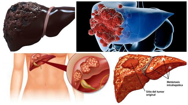 tratamiento de metastasis en el higado