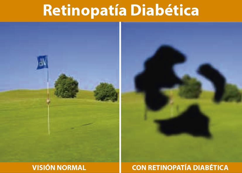 dificultades de visión y diabetes