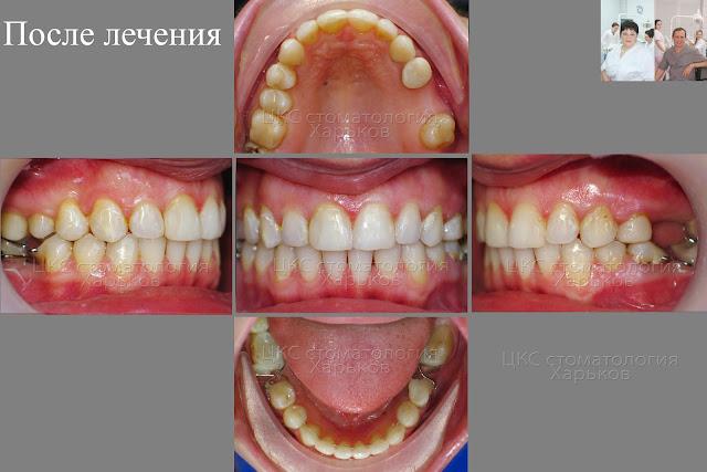 Зубы пациента после ортодонтического лечения. Нестандартные ретейнеры.