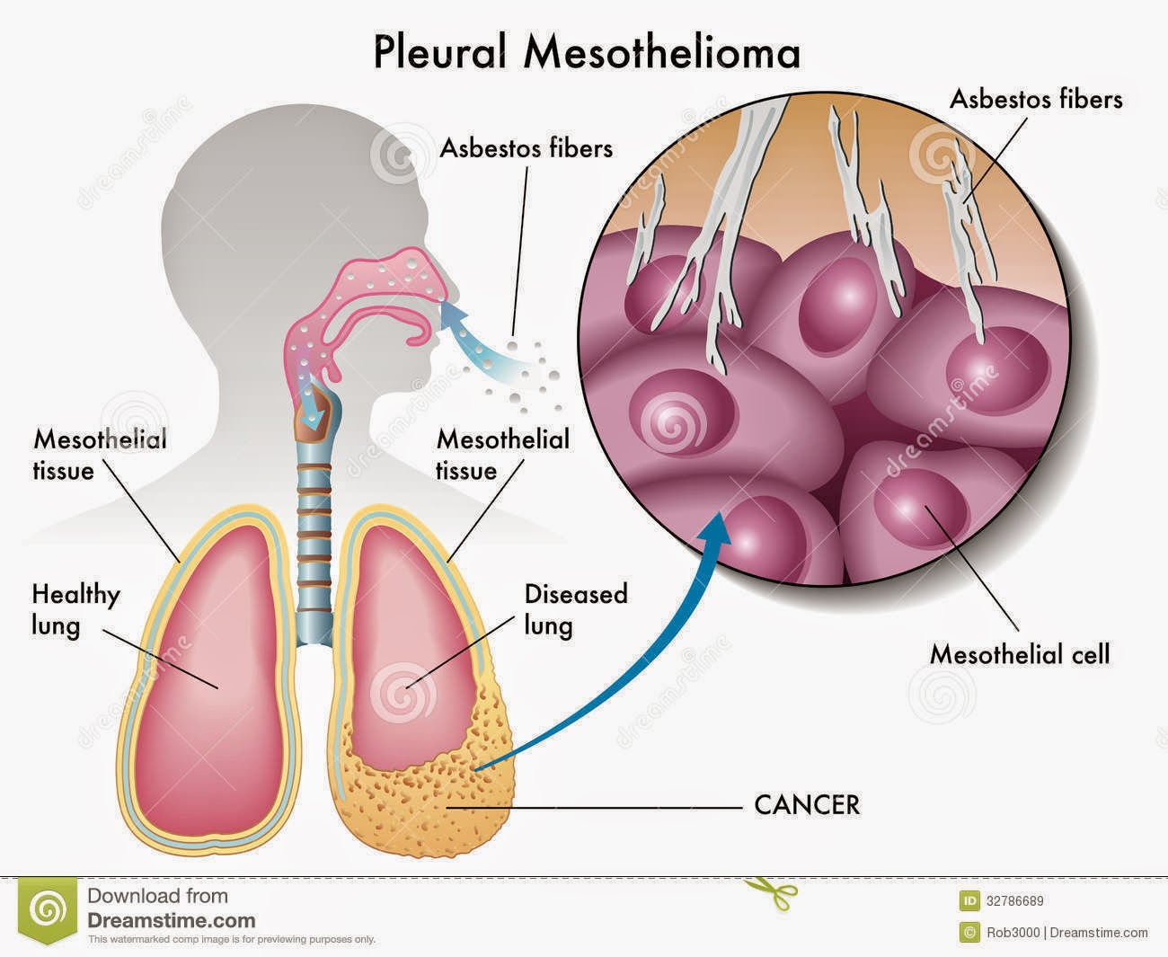 What is Malignant Pleural Mesothelioma