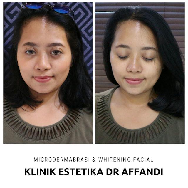 WHITENING FACIAL & MICRODERMABRASI KLINIK ESTETIKA DR AFFANDI