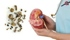 Image nama obat untuk penderita batu ginjal paling manjur