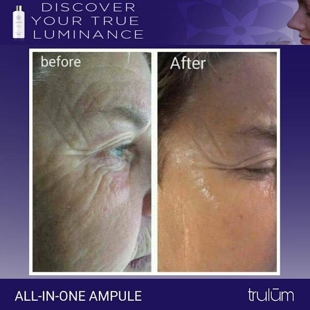 Jual Serum Penghilang Keriput Trulum Skincare Sukamaju Baru