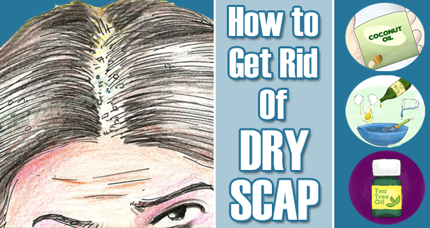 Get Rid of Dry Scalp Overnight