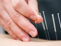 belajar pengobatan akupuntur