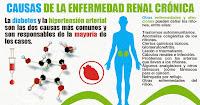 https://steviaven.blogspot.com/2018/06/la-hipertension-enfermedad-renal.html