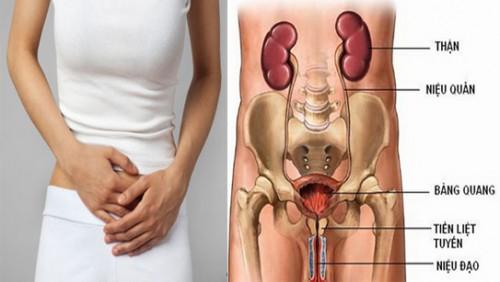 Phòng khám chữa viêm đường tiểu ở nữ cực hiệu quả tại tphcm-phuongphapphathainoikhoa