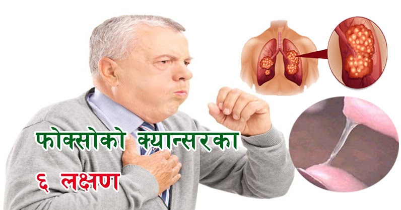 symptoms of lung cancer the nepali video. Black Bedroom Furniture Sets. Home Design Ideas