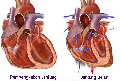 Diagnosa Untuk Penyakit Gagal Jantung Dan Tindakan Yang Biasanya Diambil