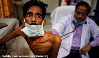 10 Jenis Penyakit Menular Berbahaya dan Mematikan di Dunia