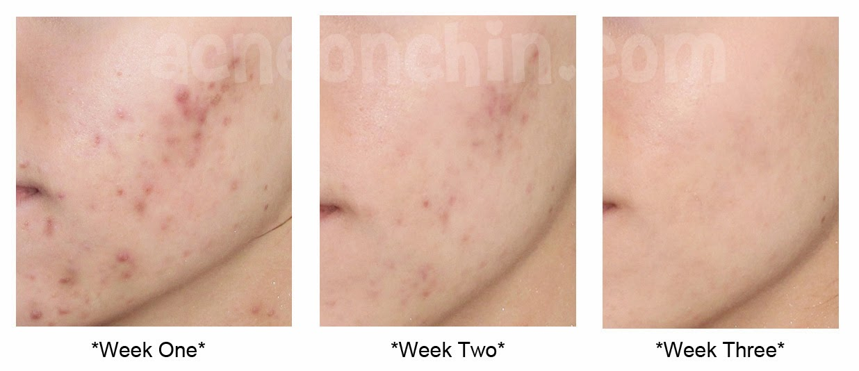 Acne Is One Of The Most Common Skin Problems And It Can Become A Significant Way To Obtain Embarrassment And Stress There Are Numerous Sources In Which The