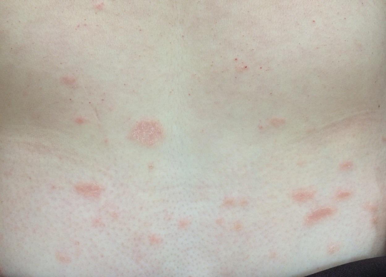 amoxicilina y accutane