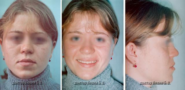Лицо пациента до лечения брекетами