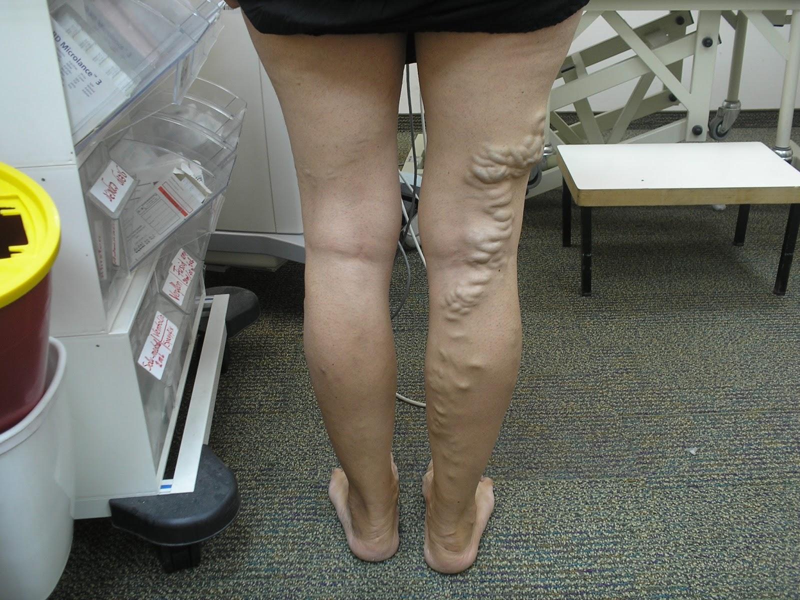 Израелско светило лекува тежки венозни проблеми - Платени публикации | varicose-veins.dptsarts.com