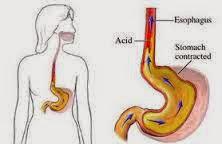 pengobatan penyakit maag dan asam lambung