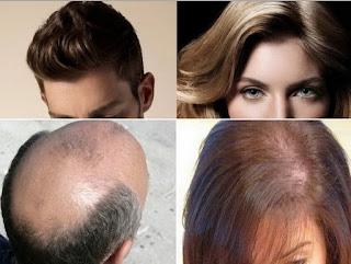 Cara Alami Rambut Botak Tumbuh dengan Cepat